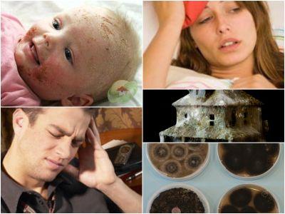 Pelėsio sukeliamos sveikatos problemos, simptomai